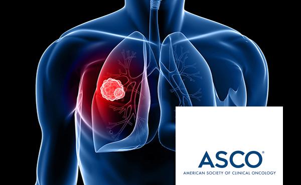 Cáncer de pulmón. Actualización y tendencias futuras