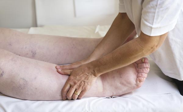 Fisioterapia en el sistema venoso y linfático