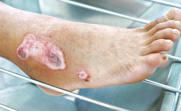 Tratamiento de úlceras y escaras